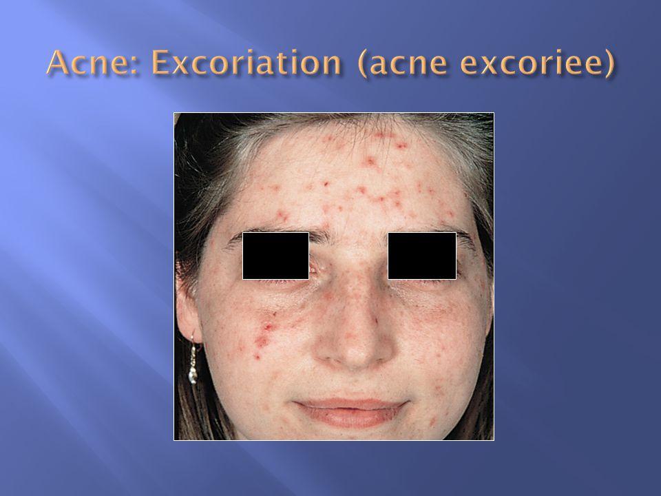 Acne: Excoriation (acne excoriee)