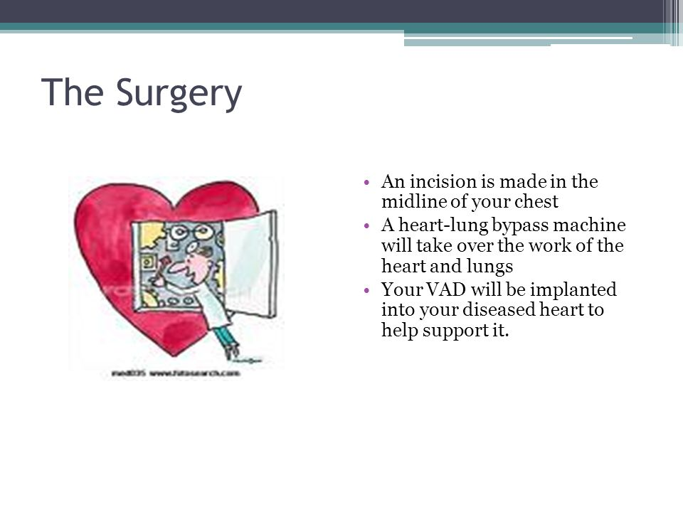 The Surgery An incision is made in the midline of your chest