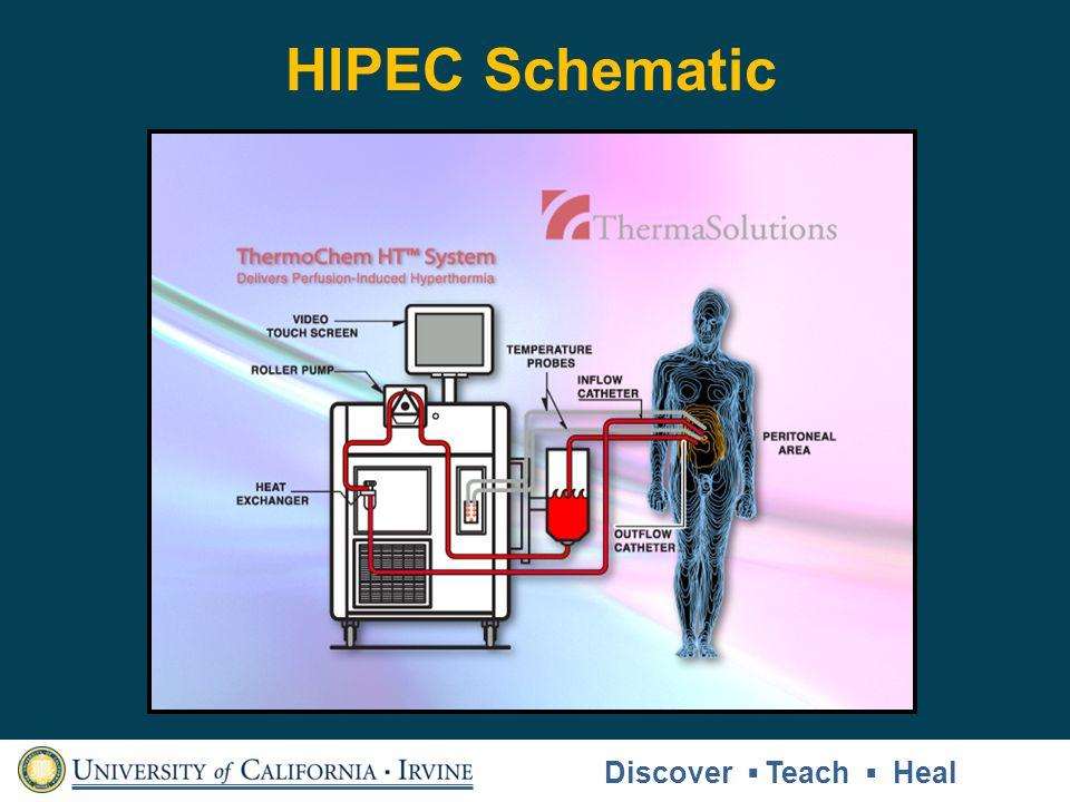 HIPEC Schematic Discover ▪ Teach ▪ Heal Discover ▪ Teach ▪ Heal