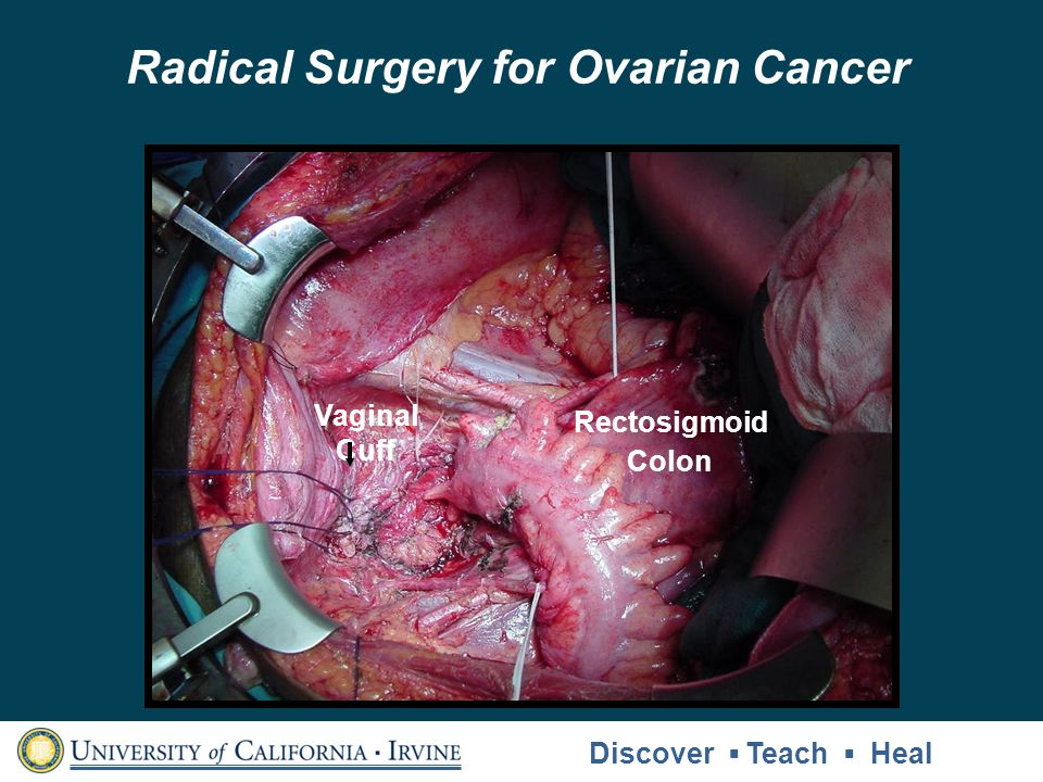 Radical Surgery for Ovarian Cancer