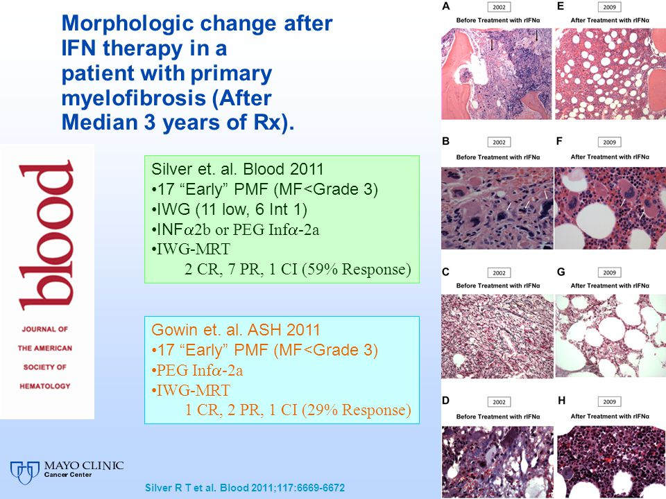 Morphologic change after IFN therapy in a