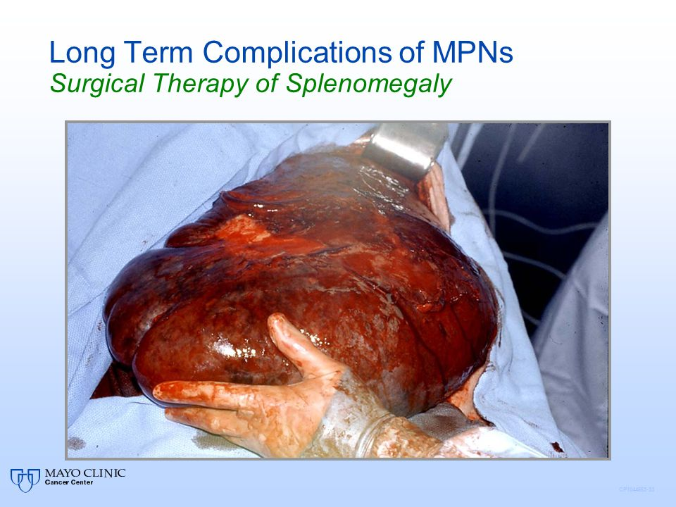 Long Term Complications of MPNs Surgical Therapy of Splenomegaly