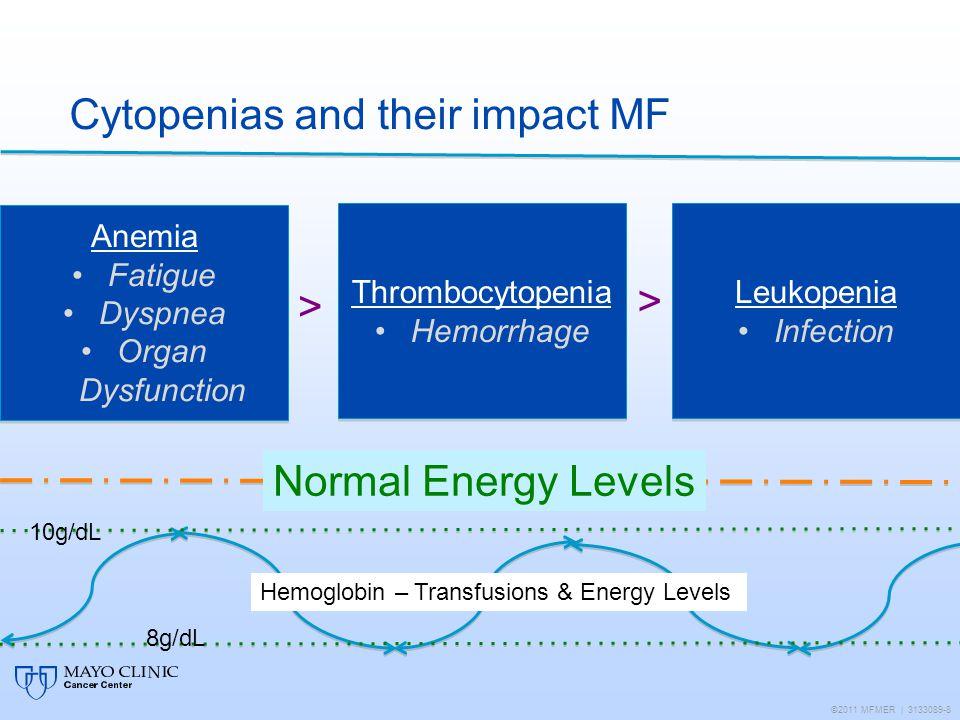 Cytopenias and their impact MF