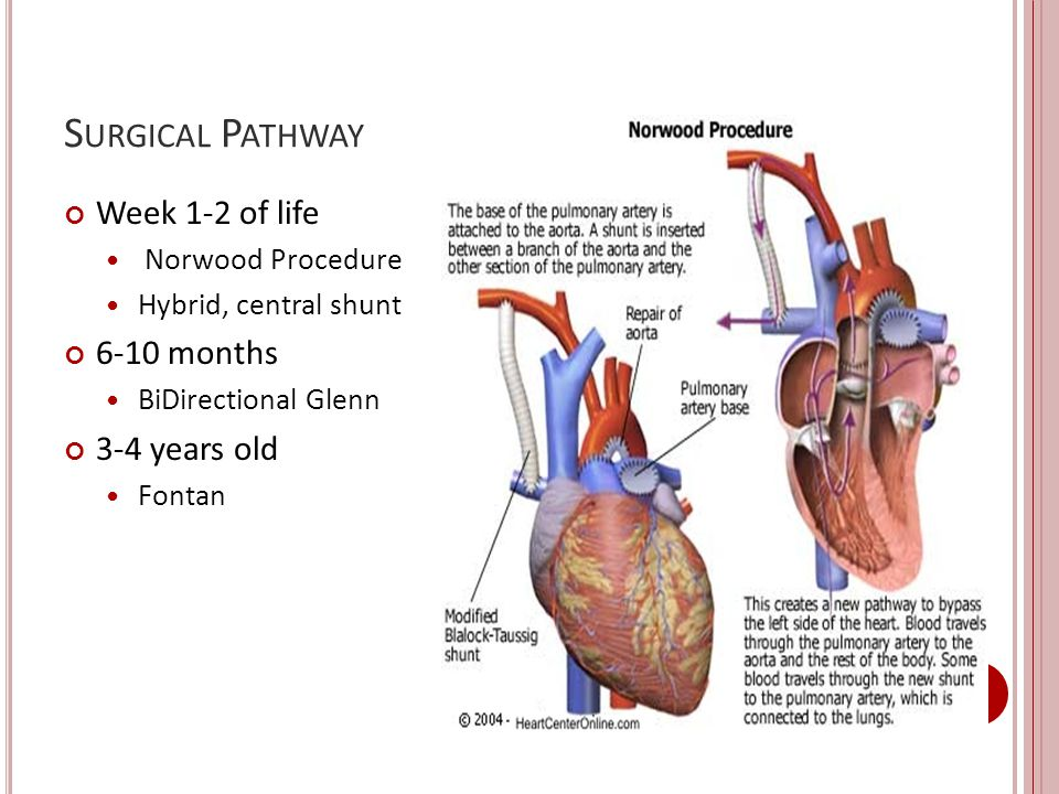Surgical Pathway Week 1-2 of life 6-10 months 3-4 years old