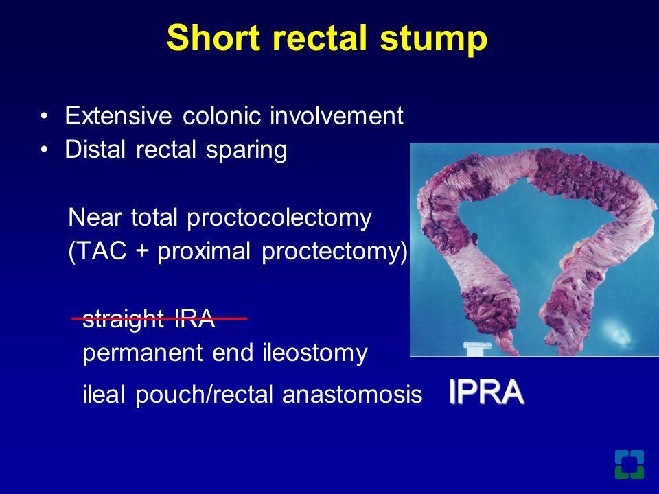 Short rectal stump Extensive colonic involvement Distal rectal sparing
