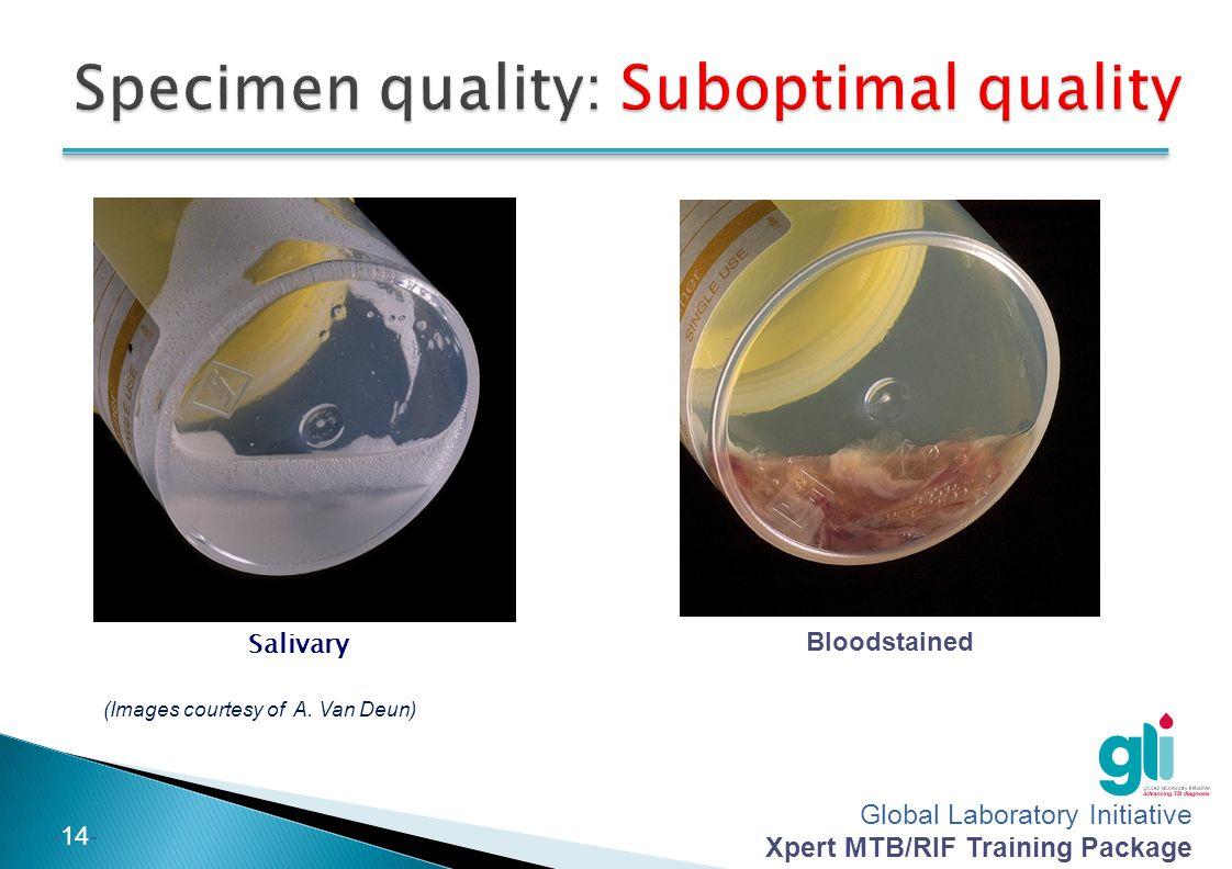 Specimen quality: Suboptimal quality