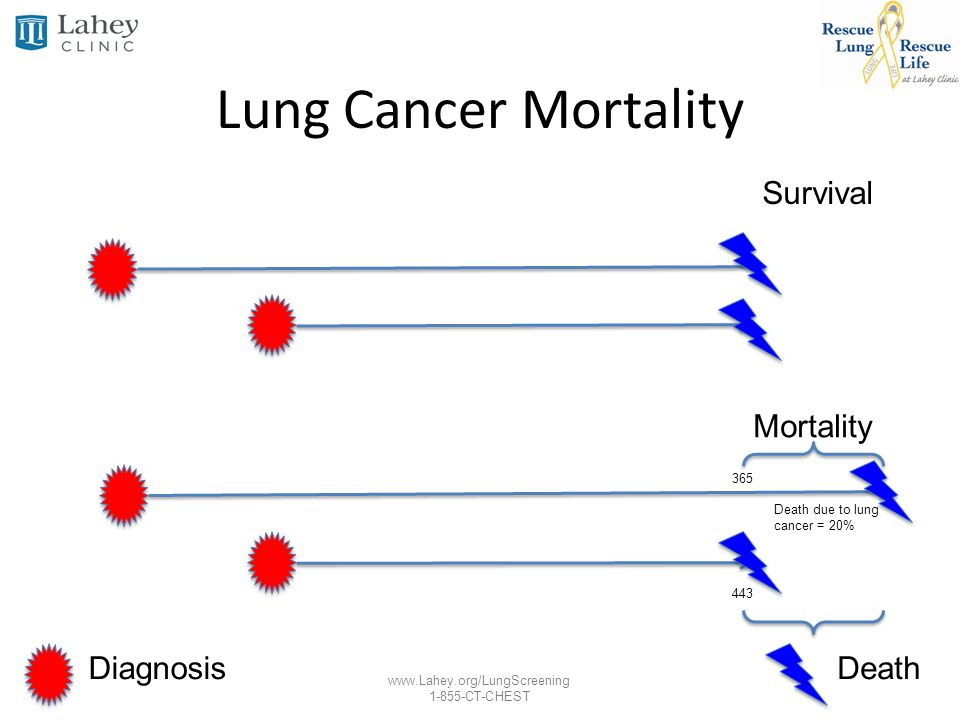 Lung Cancer Mortality Survival Mortality Diagnosis Death