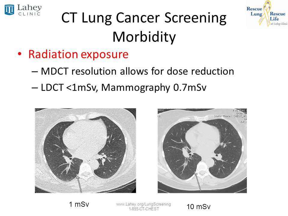 CT Lung Cancer Screening Morbidity