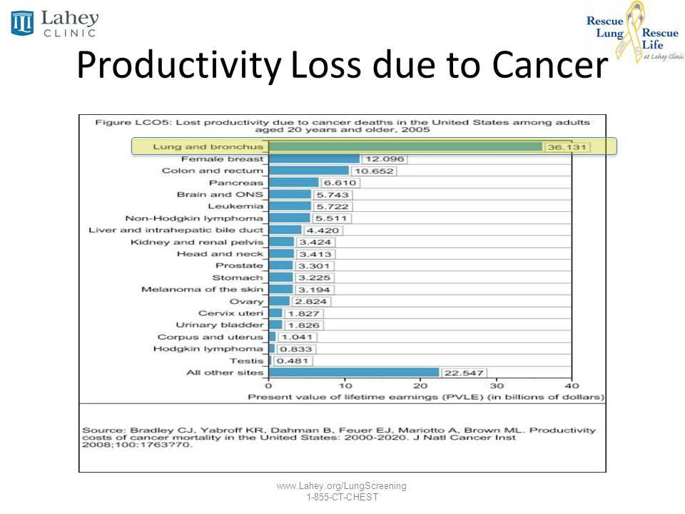 Productivity Loss due to Cancer