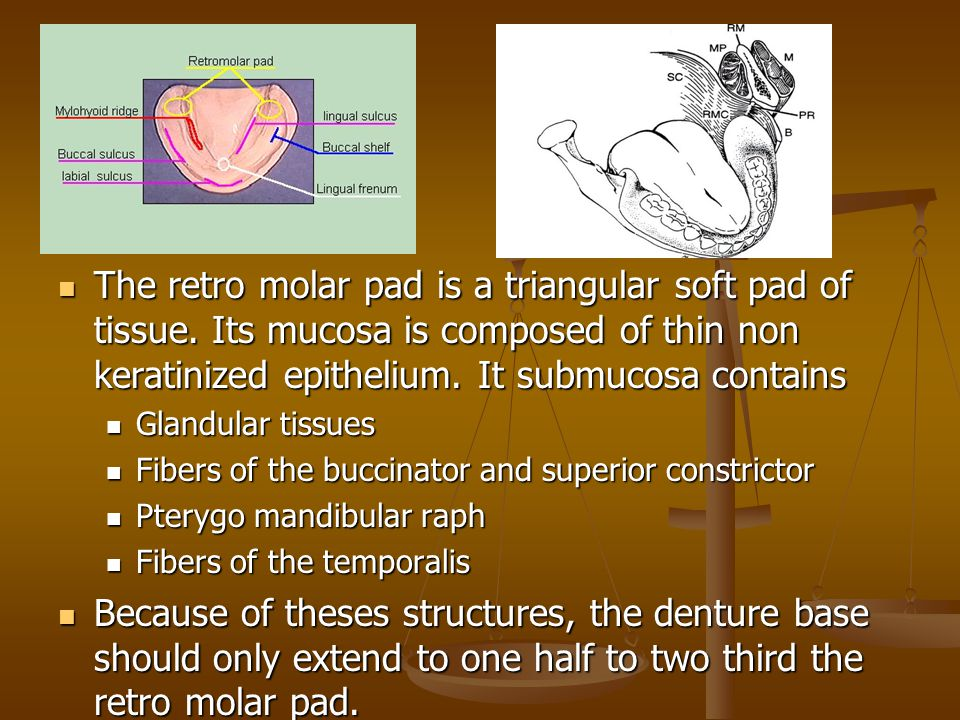 The retro molar pad is a triangular soft pad of tissue