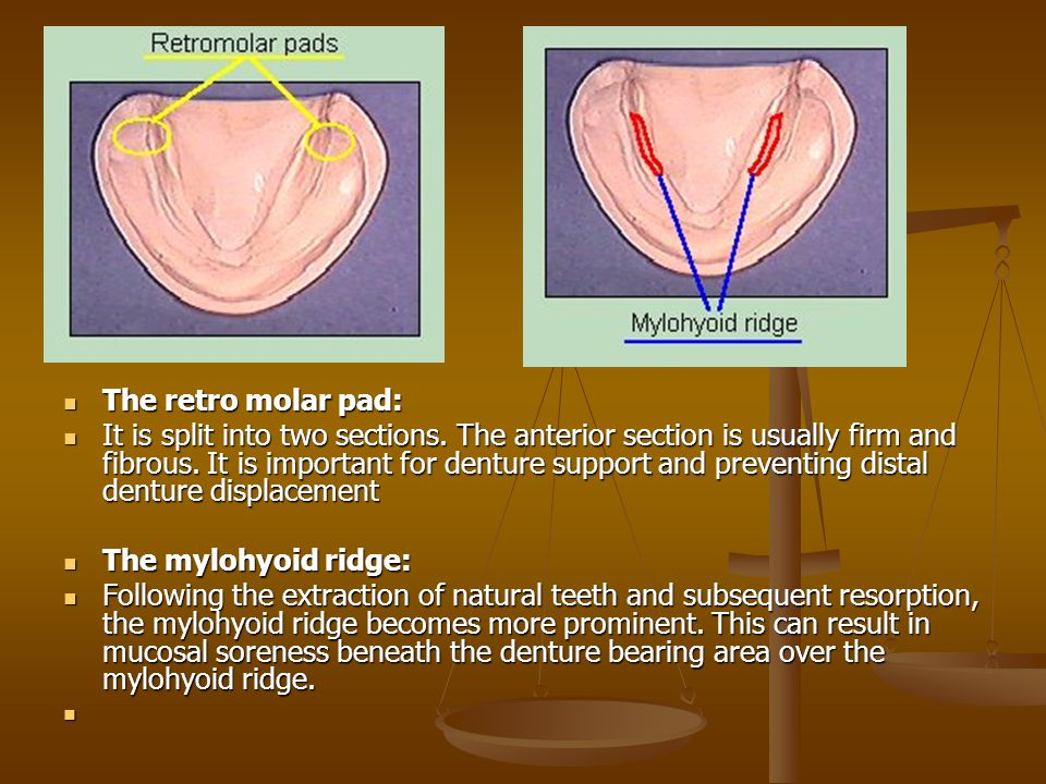 The retro molar pad: