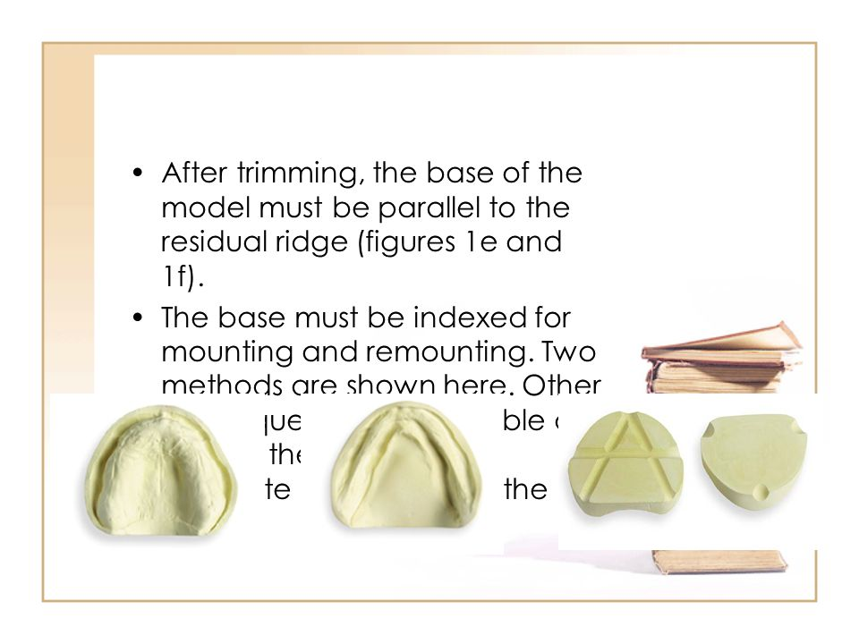 After trimming, the base of the model must be parallel to the residual ridge (figures 1e and 1f).