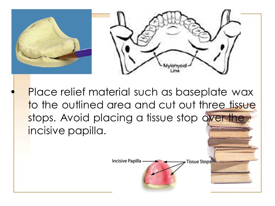 Place relief material such as baseplate wax to the outlined area and cut out three tissue stops.