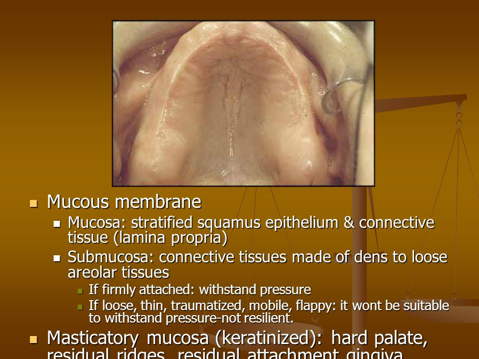 Mucous membrane Mucosa: stratified squamus epithelium & connective tissue (lamina propria)