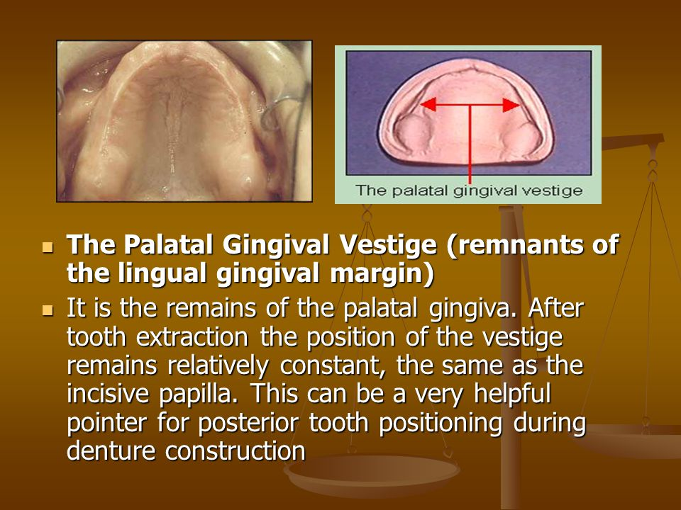 The Palatal Gingival Vestige (remnants of the lingual gingival margin)
