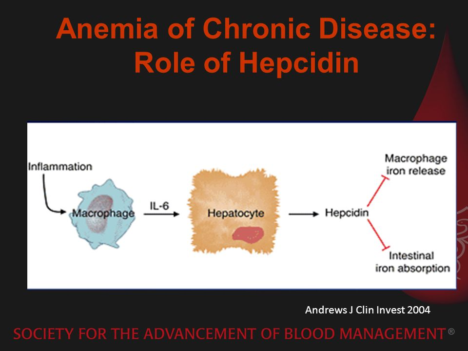 Anemia of Chronic Disease: Role of Hepcidin