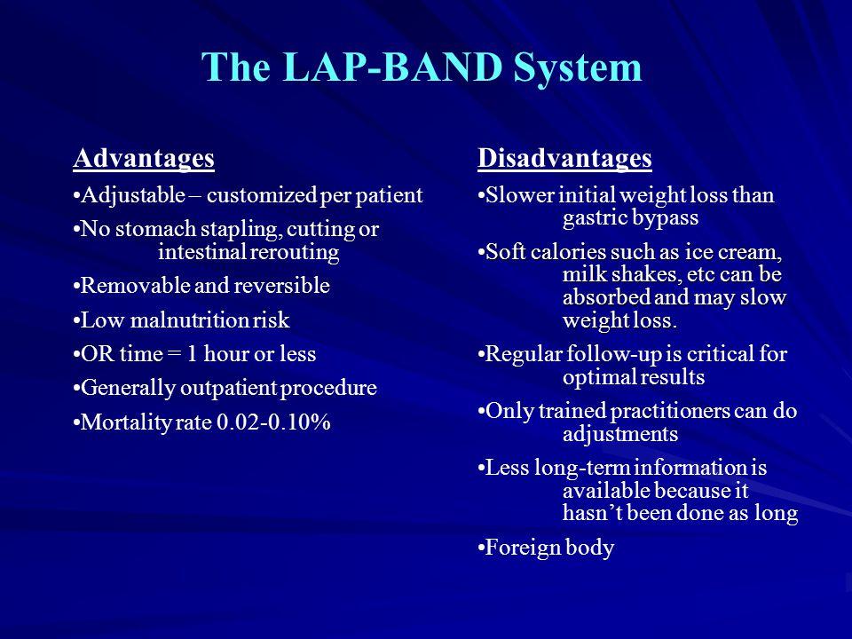 The LAP-BAND System Advantages Disadvantages