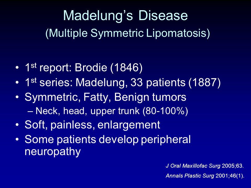 Madelung's Disease (Multiple Symmetric Lipomatosis)