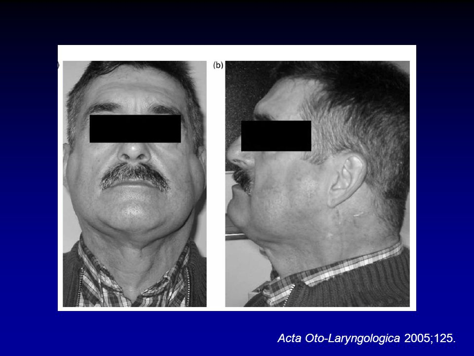 Acta Oto-Laryngologica 2005;125.