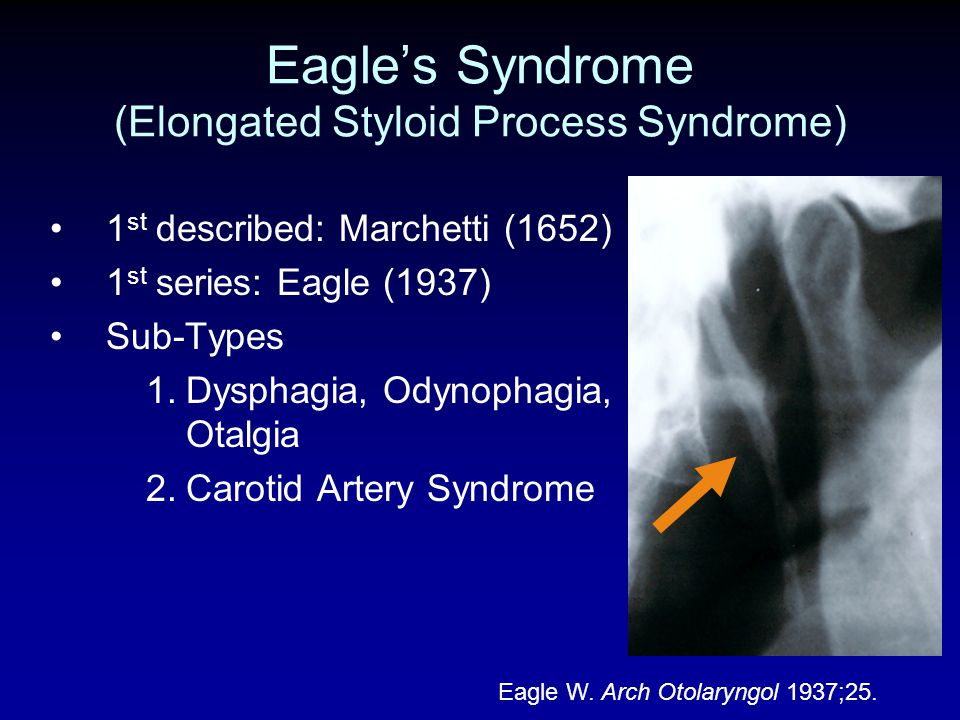 Eagle's Syndrome (Elongated Styloid Process Syndrome)