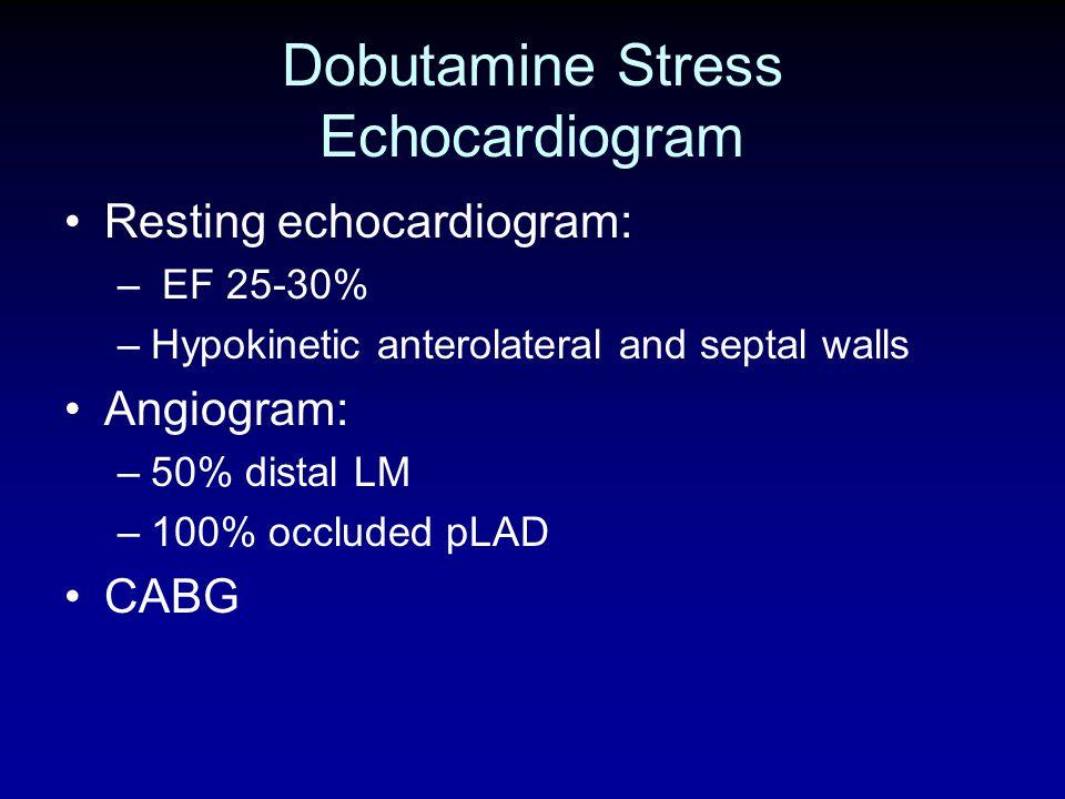 Dobutamine Stress Echocardiogram