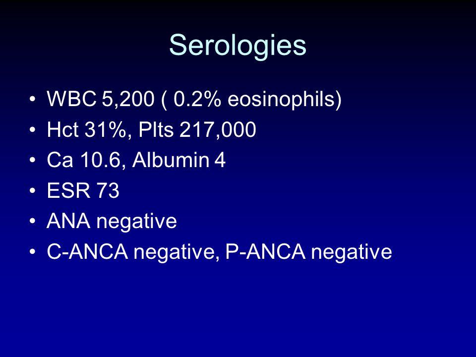 Serologies WBC 5,200 ( 0.2% eosinophils) Hct 31%, Plts 217,000