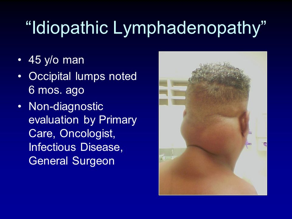 Idiopathic Lymphadenopathy