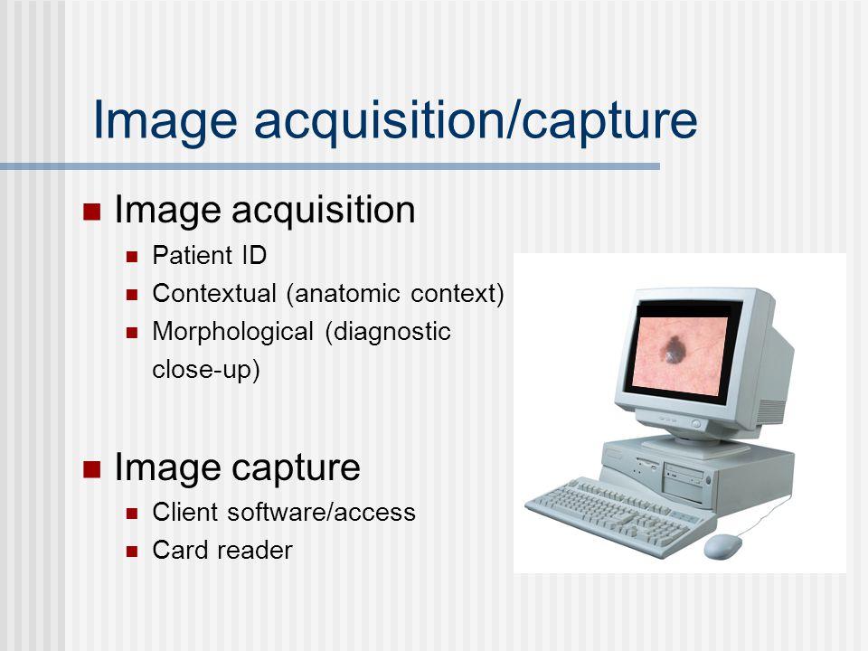 Image acquisition/capture