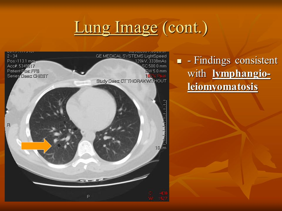 Lung Image (cont.) - Findings consistent with lymphangio-leiomyomatosis