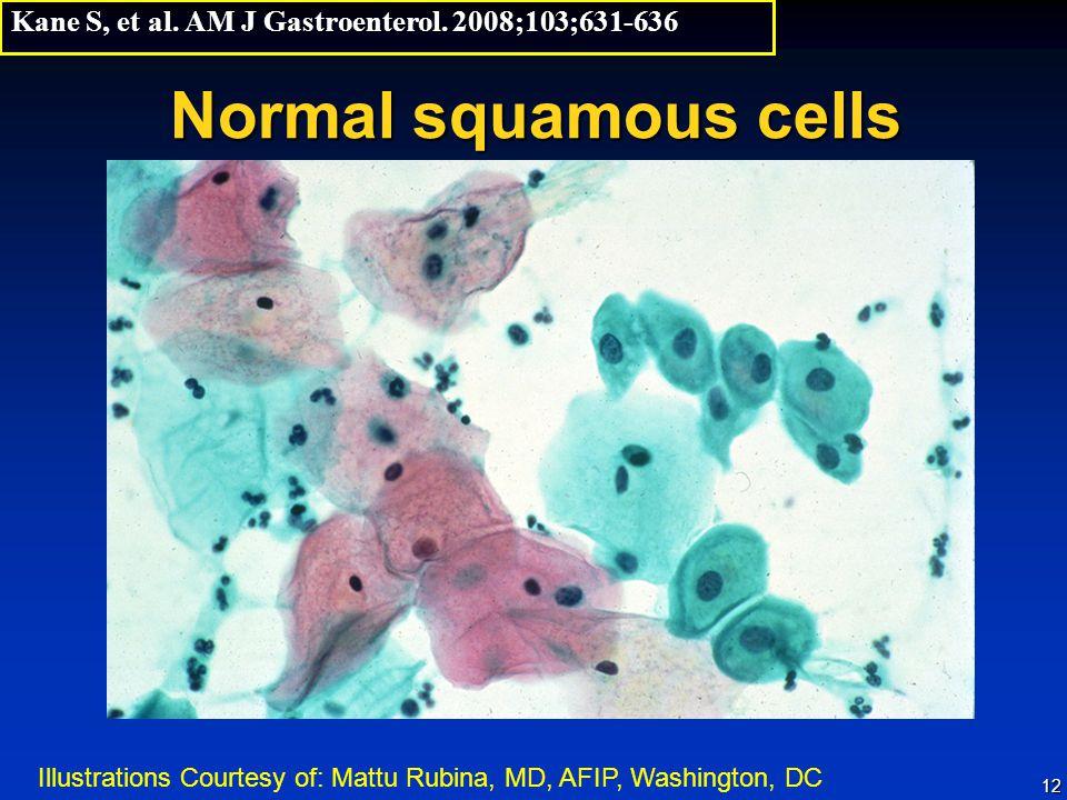 Kane S, et al. AM J Gastroenterol. 2008;103;631-636