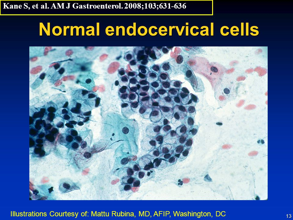 Normal endocervical cells