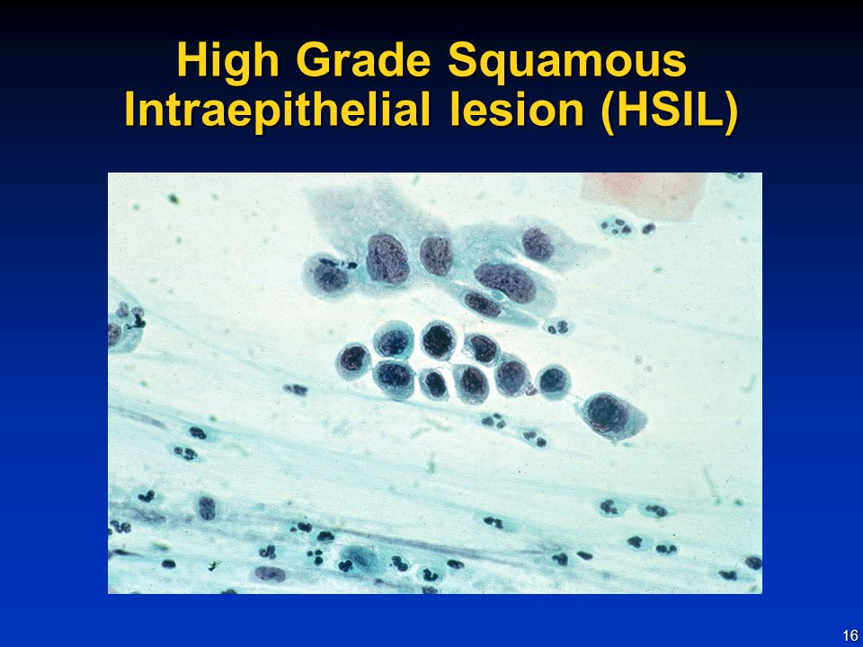 High Grade Squamous Intraepithelial lesion (HSIL)