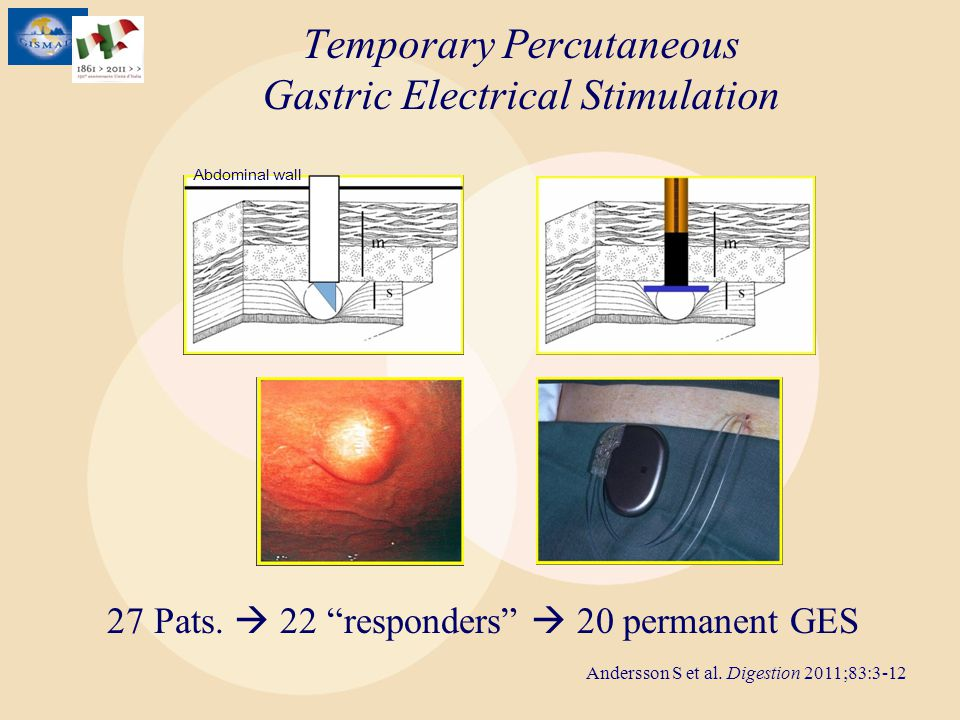 Temporary Percutaneous Gastric Electrical Stimulation