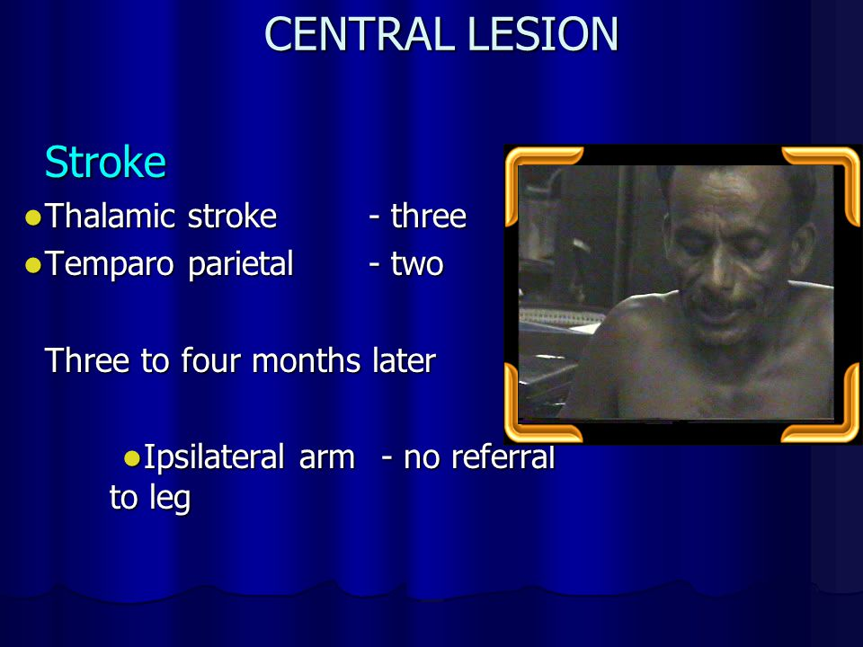 CENTRAL LESION Stroke Thalamic stroke - three Temparo parietal - two