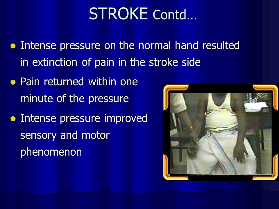 STROKE Contd… Intense pressure on the normal hand resulted in extinction of pain in the stroke side.