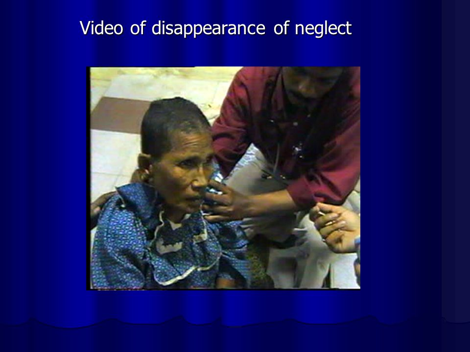 Video of disappearance of neglect