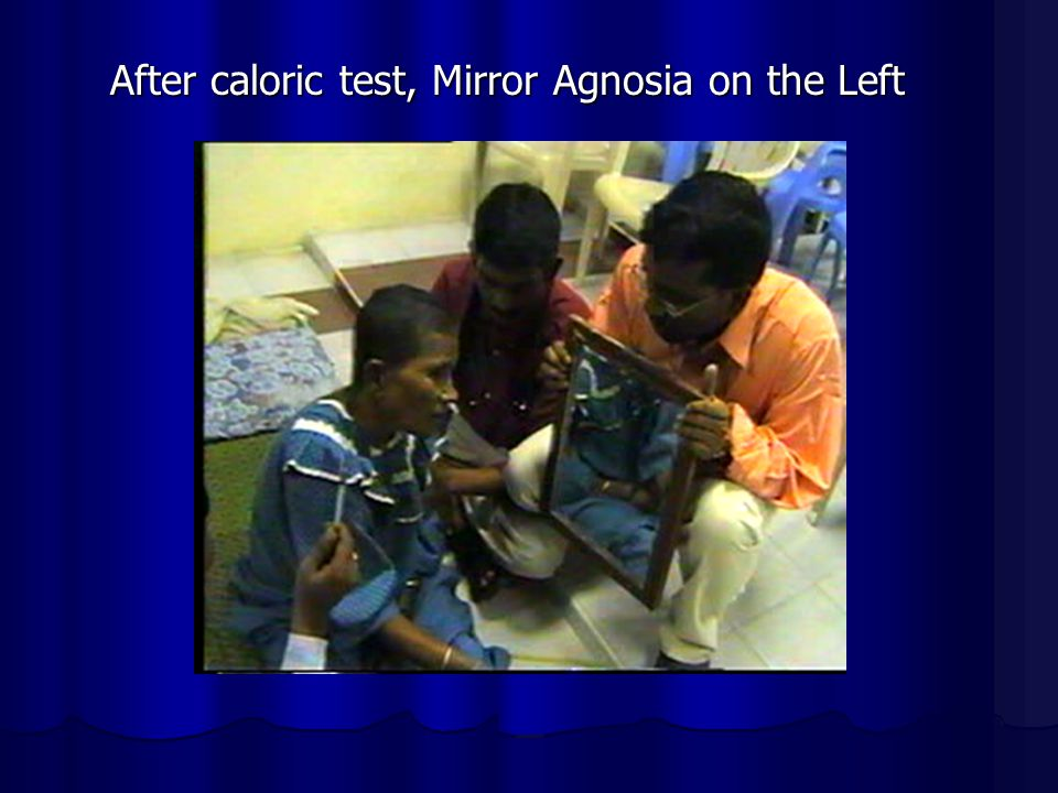 After caloric test, Mirror Agnosia on the Left
