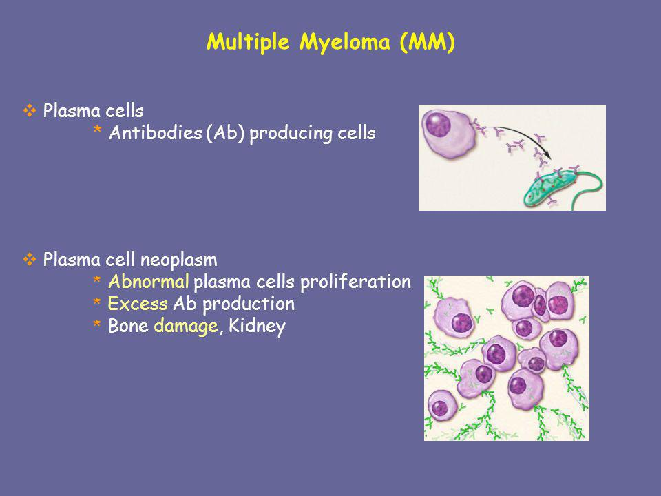Multiple Myeloma (MM) Plasma cells * Antibodies (Ab) producing cells