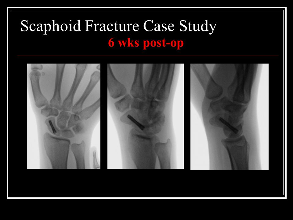 Scaphoid Fracture Case Study 6 wks post-op