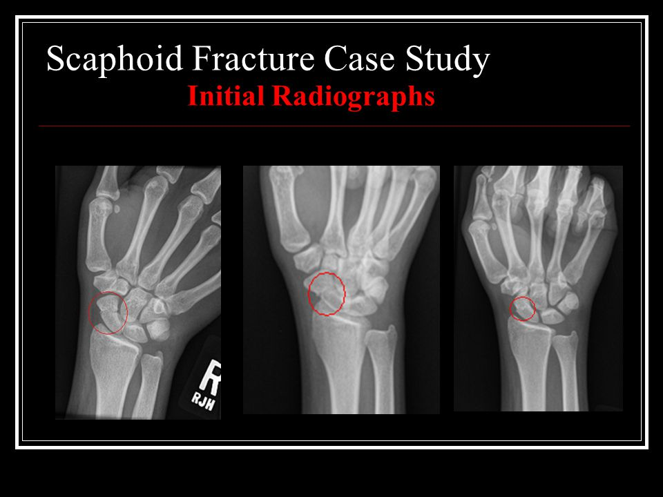 Scaphoid Fracture Case Study Initial Radiographs