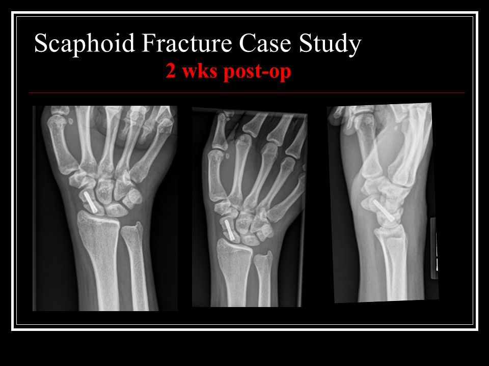 Scaphoid Fracture Case Study 2 wks post-op