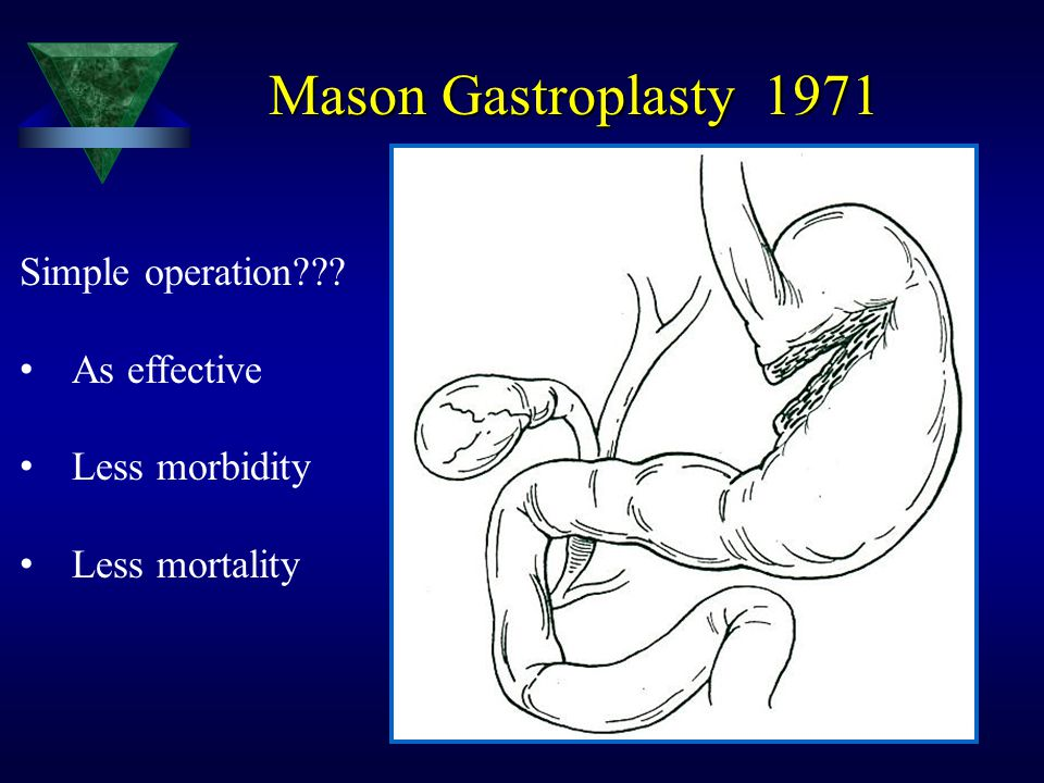 Mason Gastroplasty 1971 Simple operation As effective