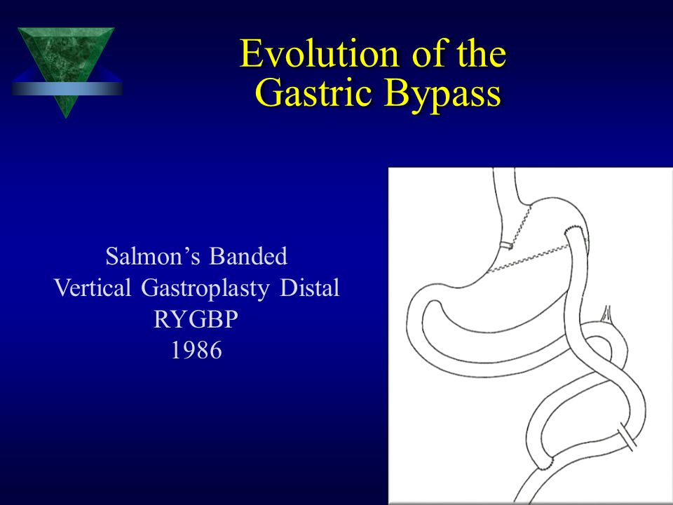 Vertical Gastroplasty Distal RYGBP
