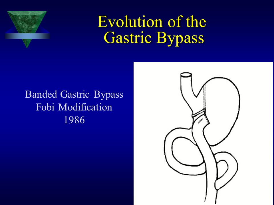 Evolution of the Gastric Bypass Banded Gastric Bypass