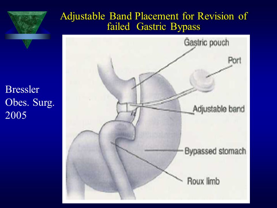 Adjustable Band Placement for Revision of failed Gastric Bypass