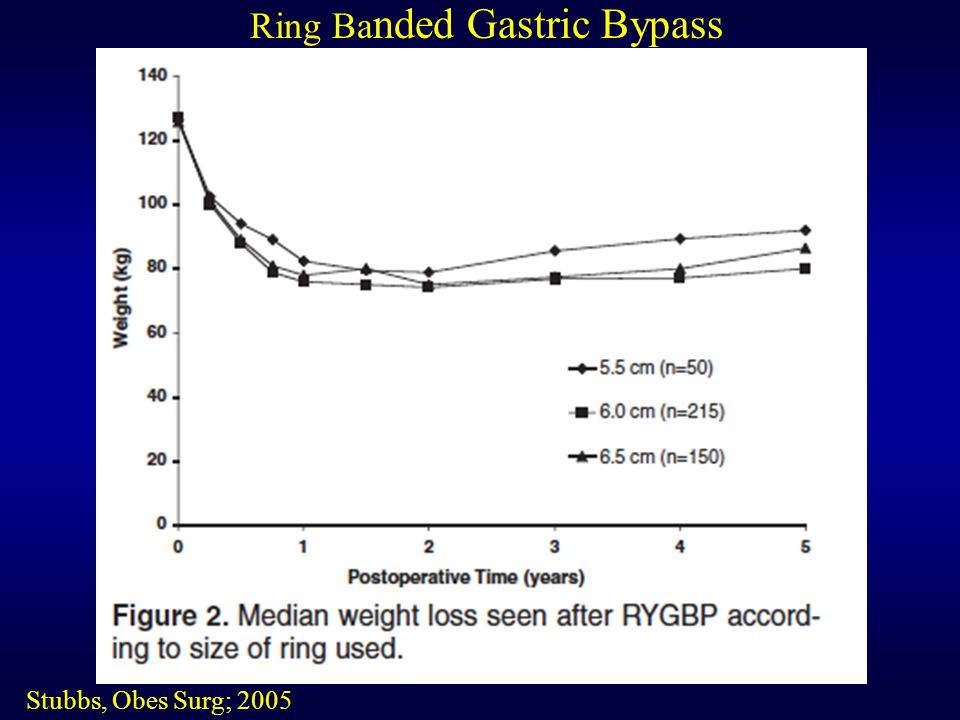 Ring Banded Gastric Bypass