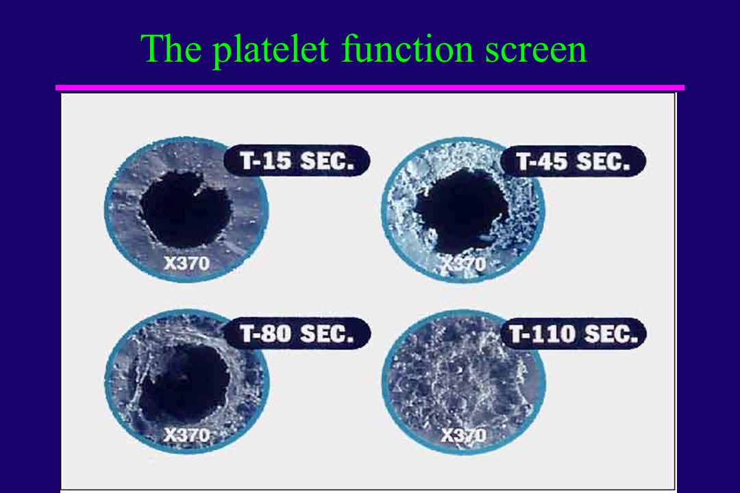 The platelet function screen