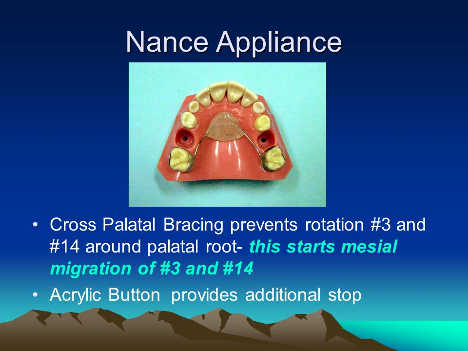 Nance Appliance Cross Palatal Bracing prevents rotation #3 and #14 around palatal root- this starts mesial migration of #3 and #14.
