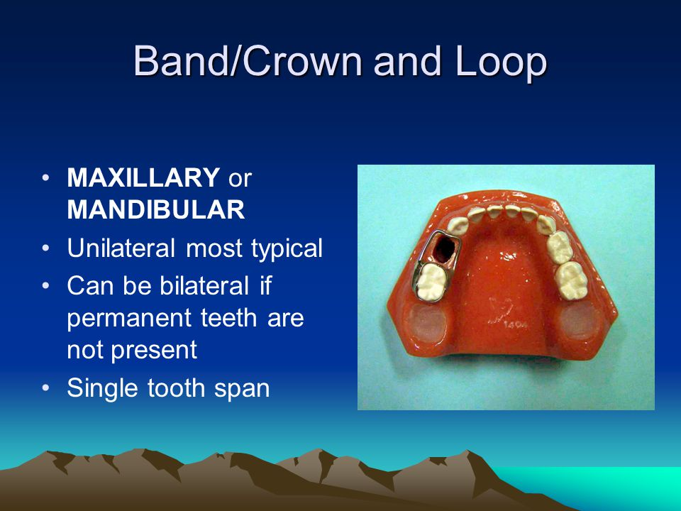Band/Crown and Loop MAXILLARY or MANDIBULAR Unilateral most typical