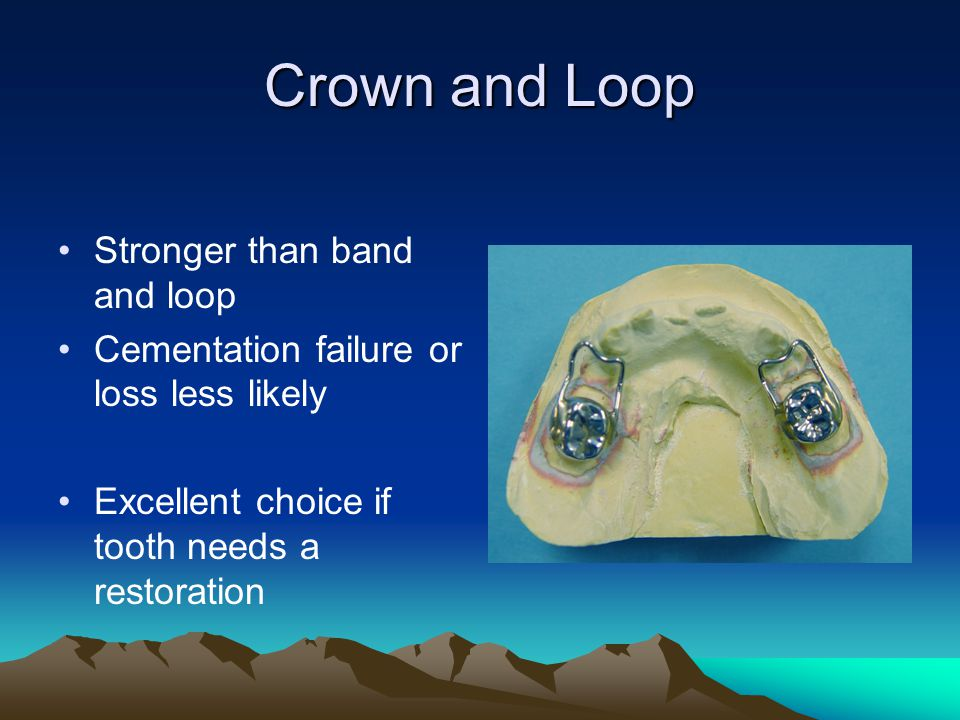 Crown and Loop Stronger than band and loop